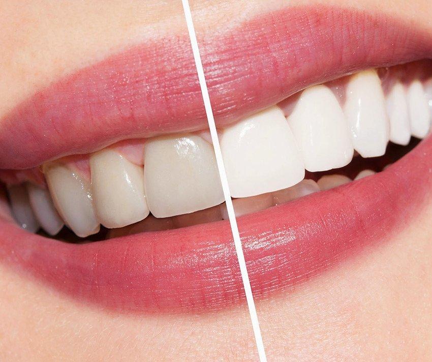 Cosmesi Dentale E Sbiancamento