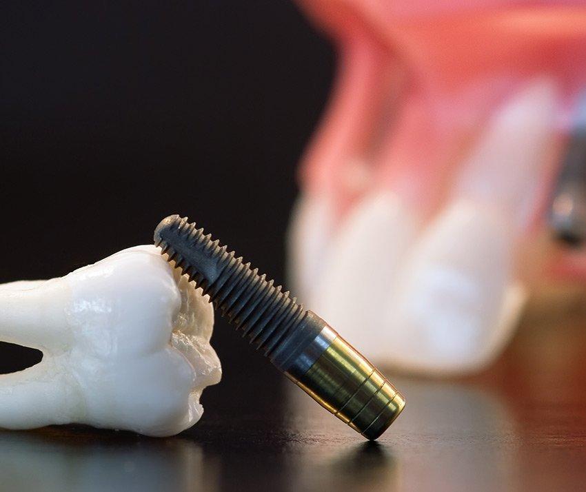 Implantologia Endossea
